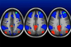 Функциональное МРТ мозга детей, вырасших в бедности